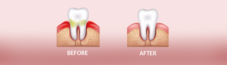 Periodontal Surgery - Before & After
