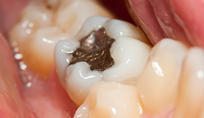 Bonded Dental Cavity Fillings