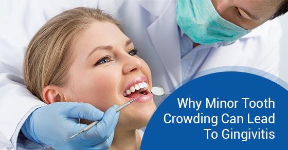 Why Minor Tooth Crowding Can Lead To Gingivitis