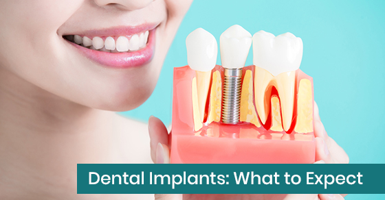 Dental-Implants-What-to-Expect